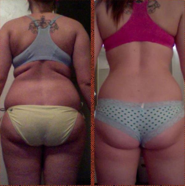 """""""До и после потери веса"""" минус 15 кг"""